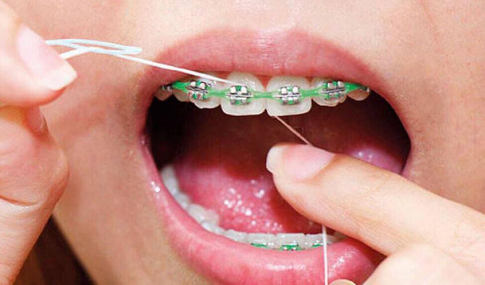 usar cepillo electrico con brackets