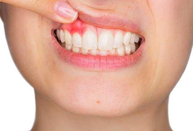 periodoncia gibraltar
