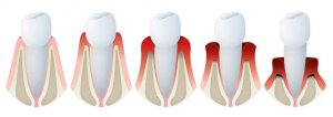 periodontitis gibraltar