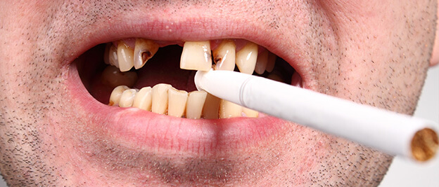 fumar consecuencias dientes