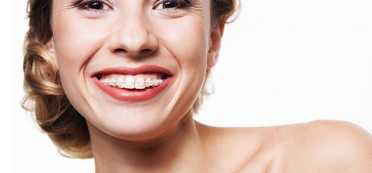 beneficios-ortodoncia-adultos
