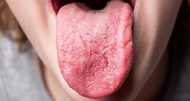 lengua rojiza