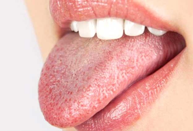 boca seca