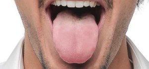 sindrome boca seca
