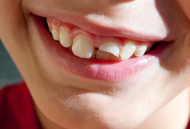 fractura dental