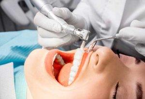 limpieza dental
