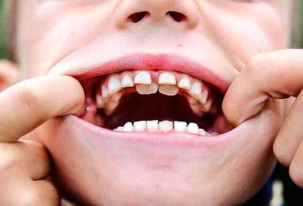 dientes supernumerarios